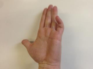Scott - big hand